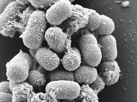 Scanning electron microscope image of Acinetobacter baumannii. AceI is naturally expressed on the surface of these bacteria.